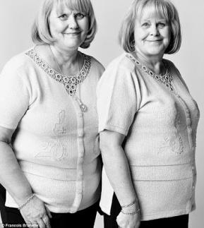 gemelos sin parentesco (15)