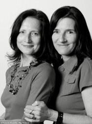 gemelos sin parentesco (27)